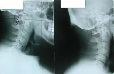 Chiropractic Renton WA X-Ray Before and After